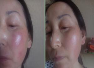 轻度激素脸怎么修复?激素修复方法有哪些