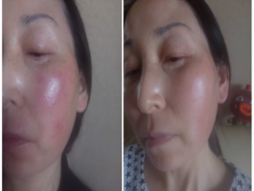激素脸如何修复过敏红肿痒?方法很重要!